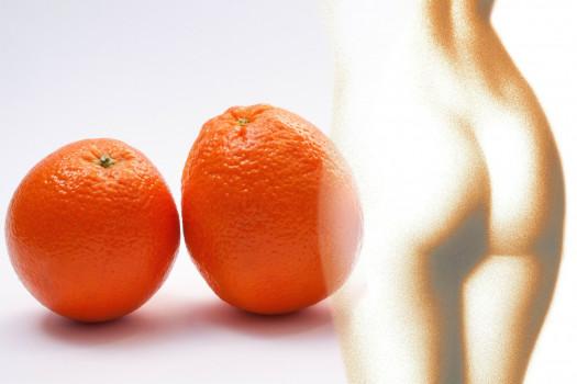 xekios Cellulite: causes et conseils pour l'éliminer lifestyle Non classé  cellulite conseil pour l'eviter cellulite beauté